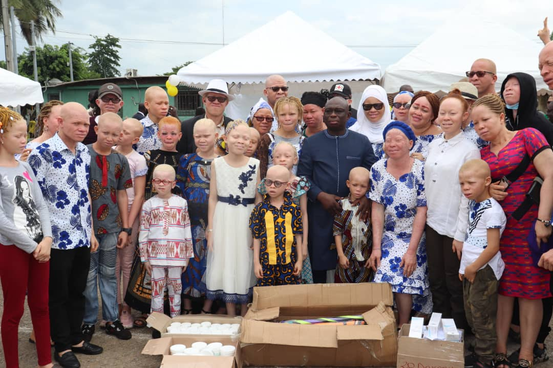 The albino community in Côte d'Ivoire on a donation day where locally produced sunscreen is handed out and produced by albinos of the community.